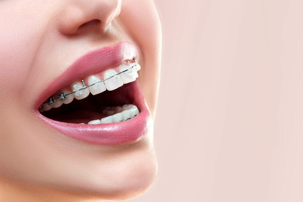 Advantages and Disadvantages of dental braces