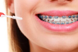 Dental braces pros and cons