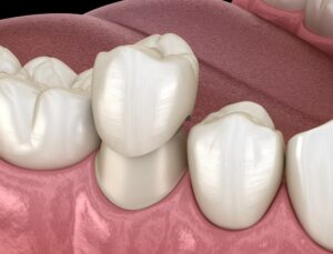 Dental crown be replacement Calgary