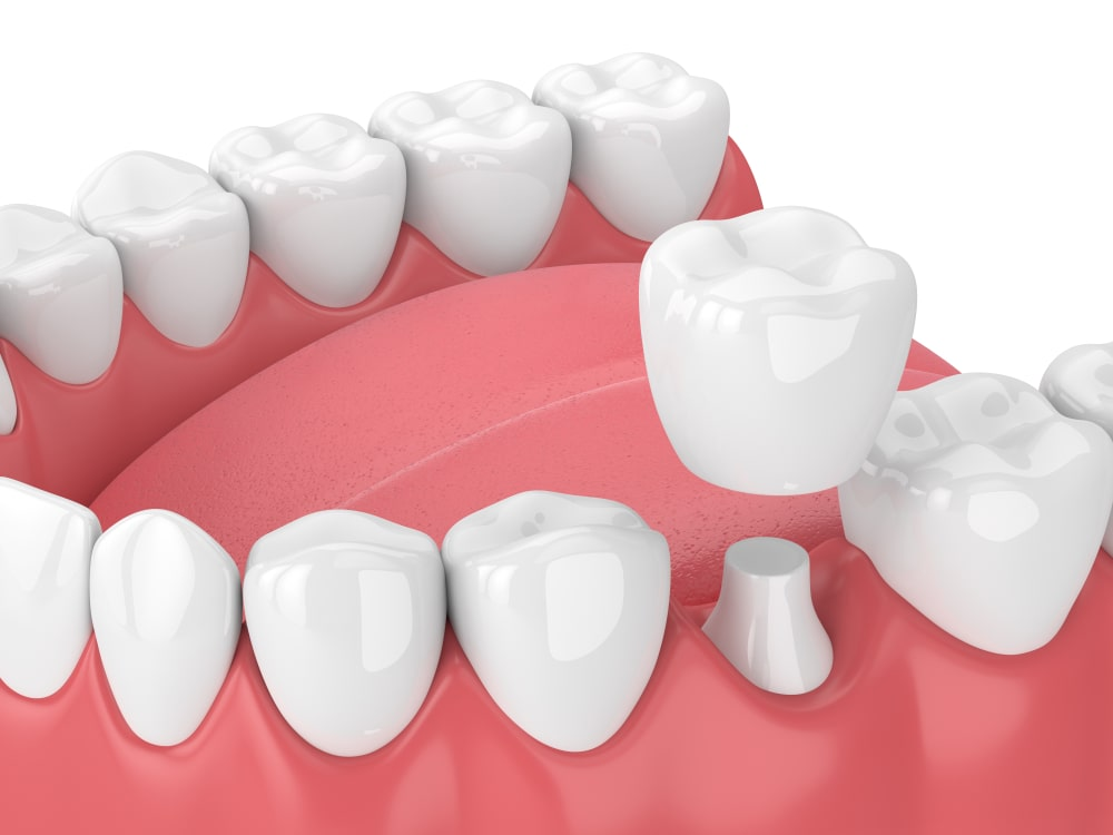When should the dental crown be replaced